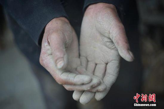结束了半天的修缮工作,老人长满老茧的双手沾满泥土。由于年事已高,他只能连续劳作半天。余下的时间,老人需要给两头猪和十几只鸡喂食。 中新社记者 贺俊怡 摄